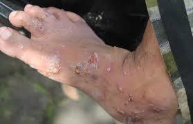 kudis menyerang kulit dan menyebabkan rasa gatal